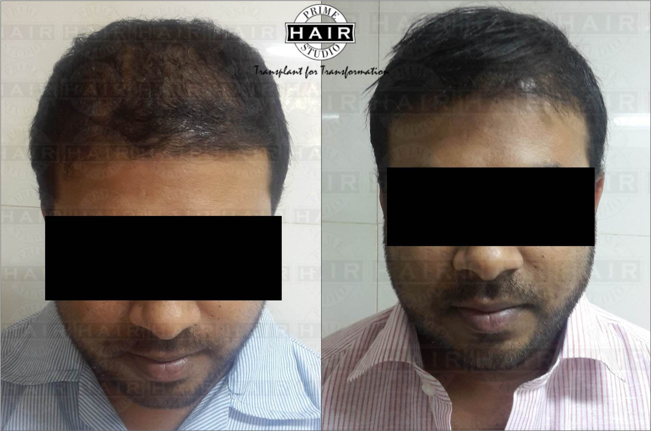 Bio Fibre Hair Implant in Mumbai