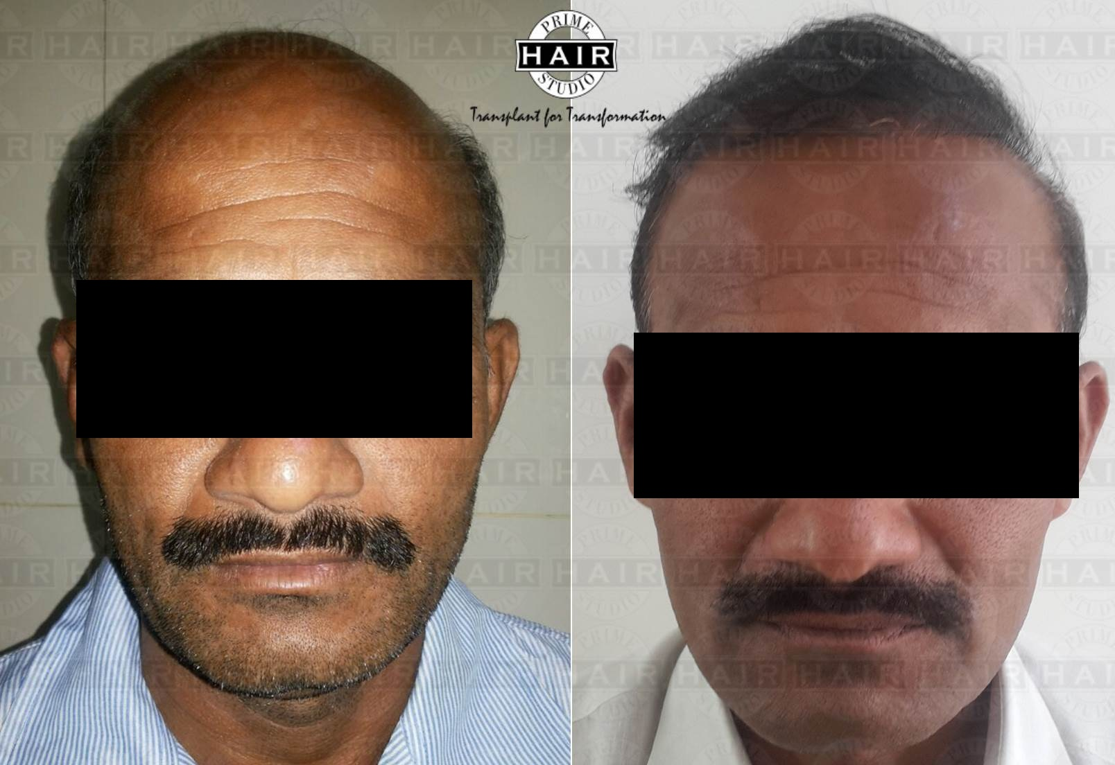 Hair Transplant by FUE technique