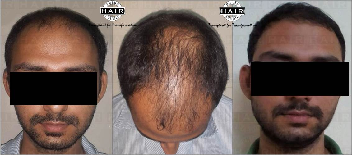 Hair Transplant Bio-FUE technique
