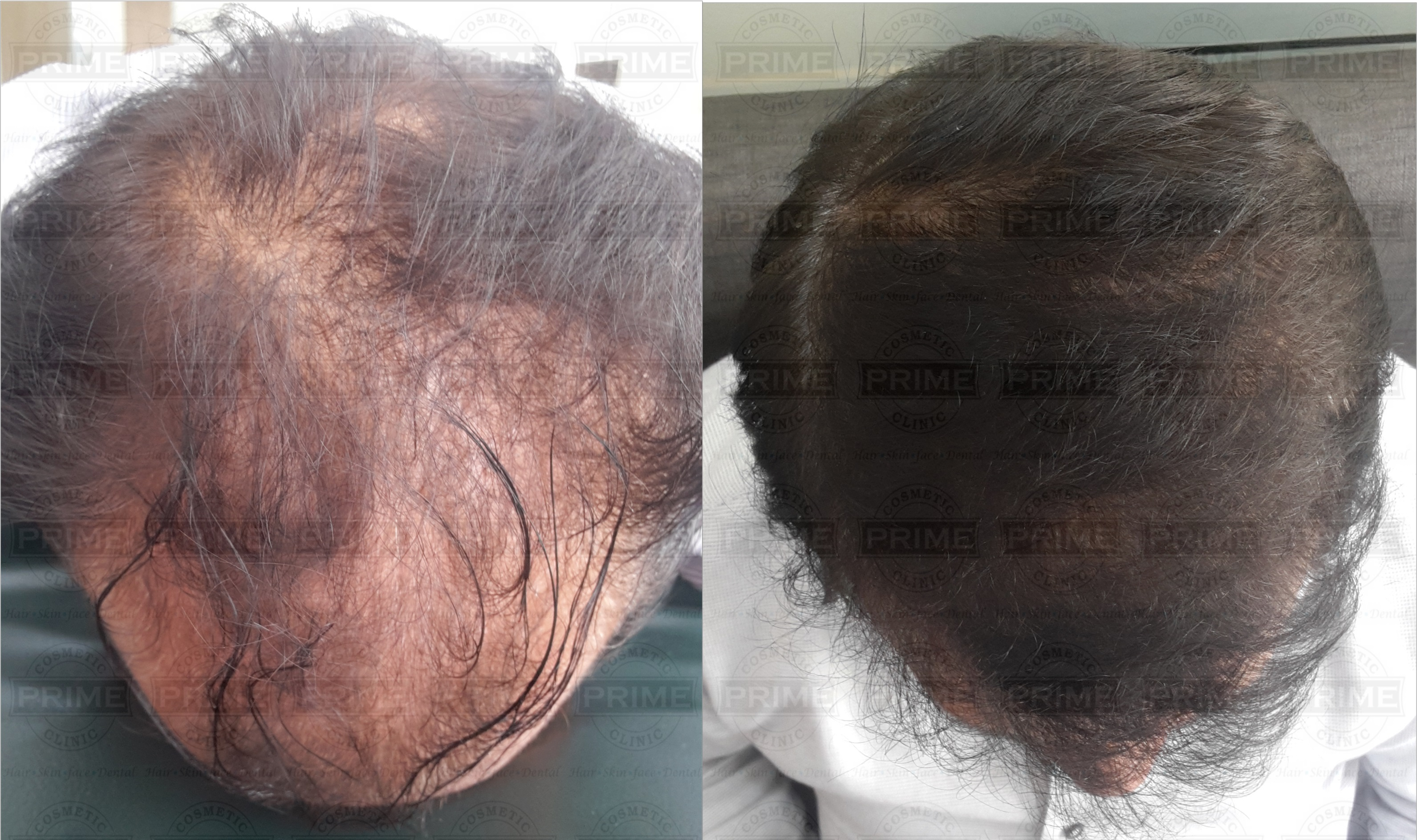 Cost of Hair Transplant in Mumbai