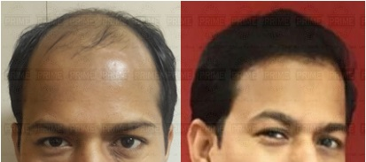 Hair Transplant Price in Mumbai