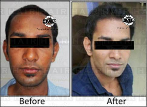 Hair Transplant for hair line built up by FUE technique