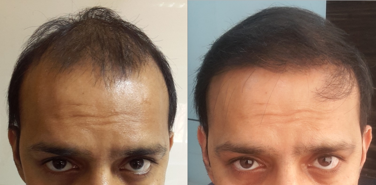 Biofibres Hair Implant Cost in India
