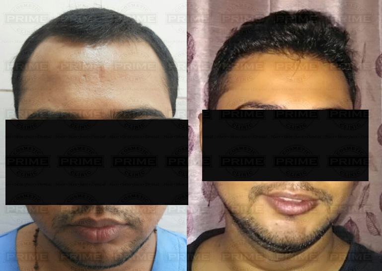 Hair Transplant cost In mumbai