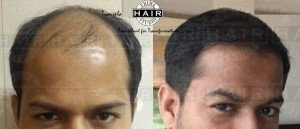 Treatment for Hair Loss - Prime Hair Studio
