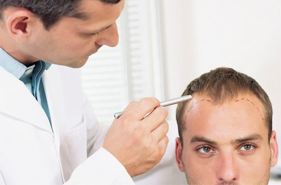 Bio-Fiber Hair Transplant Facts and Effectiveness