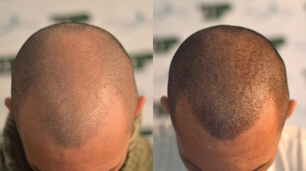 Benefits of trico-pigmentation over scalp micro-pigmentation