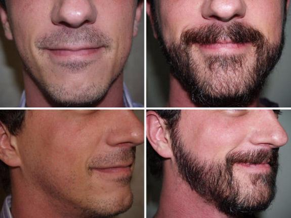 Different Styles of Beard Transplant you can opt for