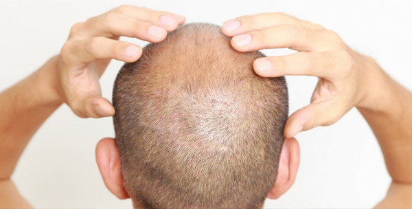 Trends of FUE Hair Transplant in Mumbai
